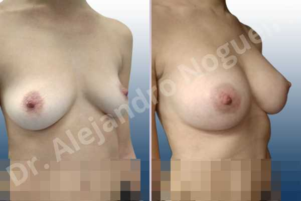 Asymmetric breasts,Cross eyed breasts,Empty breasts,Lateral breasts,Moderately saggy droopy breasts,Pendulous breasts,Pigeon chest,Small breasts,Too far apart wide cleavage breasts,Anatomical shape,Lower hemi periareolar incision,Subfascial pocket plane - photo 5