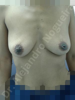 Cleft nipples,Empty breasts,Inverted nipples,Moderately saggy droopy breasts,Small breasts,Anatomical shape,Lower hemi periareolar incision,Subfascial pocket plane