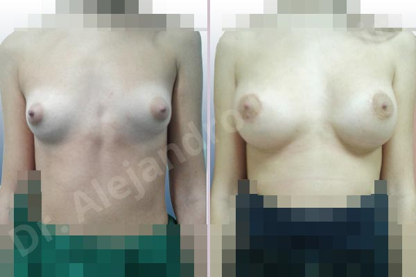 Before & After Case ZCG9TLH8