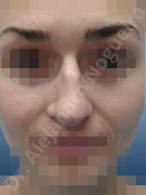Alar flaring,Alar rim retraction,Asymmetric tip,Bifid columella,Bifid tip,Bulbous tip,Central European nose,Crooked tip,Dorsum hump,Dorsum ridges,Droopy tip,Dynamic alar flaring,Large alar cartilages,Large nose,Long nose,Long upper lateral cartilages,Low radix,Narrow dorsum,Narrow nose,Overprojected tip,Parenthesis tip deformity,Pinched middle vault,Plunging tip deformity,Pointy tip,Poorly defined tip,Rhomboid dorsum,Rounded tip,Slavic nose,Sunken supratip,Alar contour rim graft,Custom made tip graft,Dorsum hump resection,Dorsum plateau resection,Ear cartilage graft harvesting,Extended shield tip columella graft,Lateral cruras replacement graft,Lateral cruras repositioning,Medial cruras replacement graft,Nasal bones osteotomies,Onlay columella graft,Onlay supratip graft,Open approach incision,Shield tip graft,Tip defatting,Tip replacement graft,Triangular cartilages caudal resection