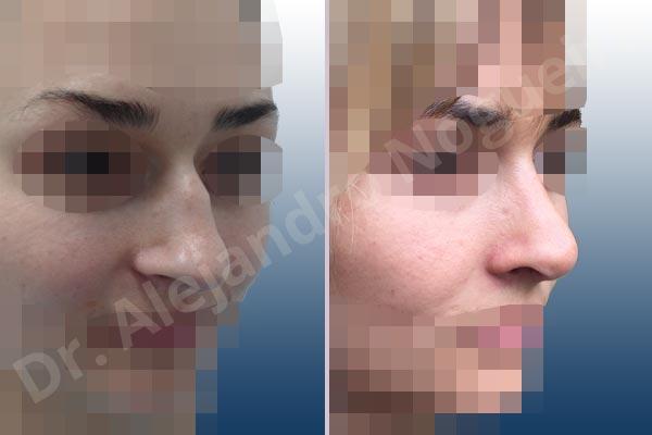 Before & After Case ZDCVM6LH