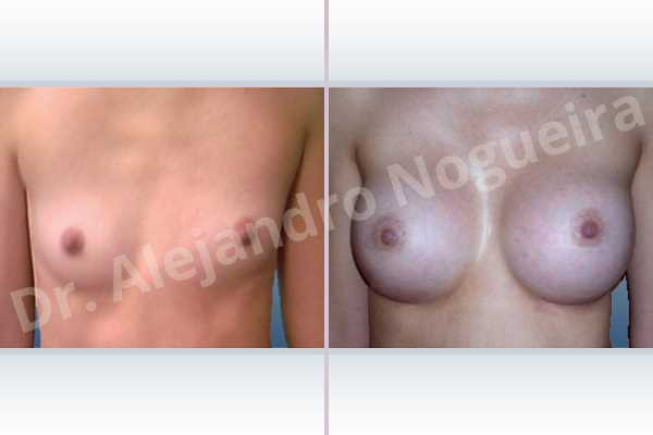 Asymmetric breasts,Skinny breasts,Small breasts,Inframammary incision,Round shape,Subfascial pocket plane - photo 1