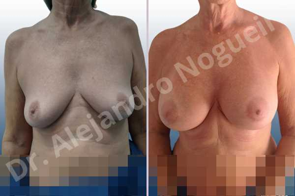 Empty breasts,Lateral breasts,Moderately saggy droopy breasts,Small breasts,Too far apart wide cleavage breasts,Wide breasts,Anatomical shape,Lower hemi periareolar incision,Subfascial pocket plane - photo 1