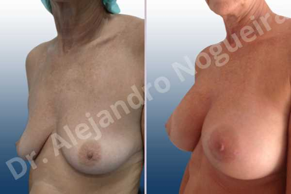 Empty breasts,Lateral breasts,Moderately saggy droopy breasts,Small breasts,Too far apart wide cleavage breasts,Wide breasts,Anatomical shape,Lower hemi periareolar incision,Subfascial pocket plane - photo 3