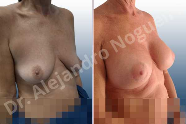 Empty breasts,Lateral breasts,Moderately saggy droopy breasts,Small breasts,Too far apart wide cleavage breasts,Wide breasts,Anatomical shape,Lower hemi periareolar incision,Subfascial pocket plane - photo 5