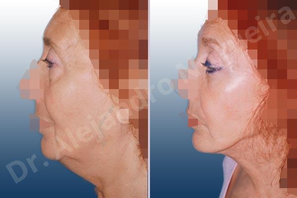 Before & After Case ZKQLUCV4