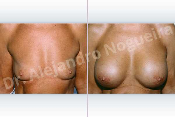 Before & After Case ZLRMVYI4