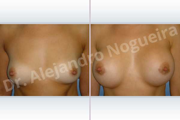 Asymmetric breasts,Cross eyed breasts,Lateral breasts,Pigeon chest,Slightly saggy droopy breasts,Small breasts,Too far apart wide cleavage breasts,Lower hemi periareolar incision,Round shape,Subfascial pocket plane - photo 1