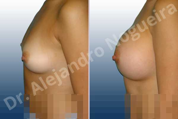 Asymmetric breasts,Cross eyed breasts,Lateral breasts,Pigeon chest,Slightly saggy droopy breasts,Small breasts,Too far apart wide cleavage breasts,Lower hemi periareolar incision,Round shape,Subfascial pocket plane - photo 2