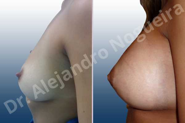 Empty breasts,Lateral breasts,Pigeon chest,Slightly saggy droopy breasts,Small breasts,Too far apart wide cleavage breasts,Wide breasts,Anatomical shape,Extra large size,Lower hemi periareolar incision,Subfascial pocket plane - photo 2
