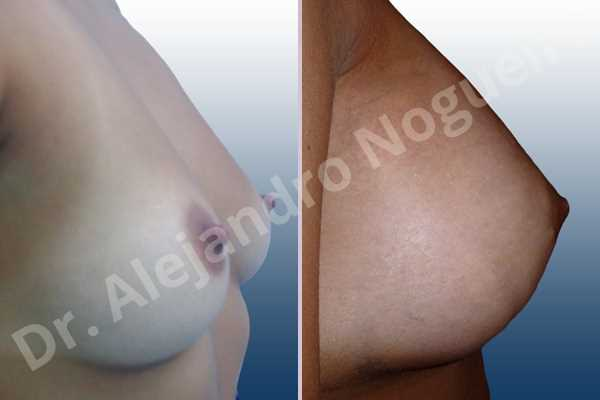Empty breasts,Lateral breasts,Pigeon chest,Slightly saggy droopy breasts,Small breasts,Too far apart wide cleavage breasts,Wide breasts,Anatomical shape,Extra large size,Lower hemi periareolar incision,Subfascial pocket plane - photo 3
