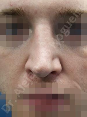 Alar flaring,Alar rim retraction,Asymmetric tip,Bifid columella,Bifid tip,Broad dorsum,Broad nose,Dorsum ridges,Failed osteotomies,Flat dorsum,Hourglass dorsum,Inverted V deformity,Irregular dorsum,Large alar cartilages,Nasal fibrosis,Nasal valve collapse,Open roof deformity,Overprojected tip,Pinched middle vault,Pinched nose,Pointy tip,Saddle nose deformity,Sunken supratip,Tip bossae,Columella strut graft,Dorsum regularization,Dorsum replacement graft,Extended columella strut graft,Intercrural columella plasty sutures,Interdomal tip plasty sutures,Lateral cruras caudal extension graft,Lateral cruras cephalic resection,Lateral cruras custom made graft,Lateral cruras shortening resection,Lateral cruras strut graft,Medial cruras shortening resection,Onlay dorsum graft,Onlay radix graft,Onlay supratip graft,Open approach incision,Rib cartilage graft harvesting,Spreader graft,Tip defatting,Transdomal tip plasty scoring,Transdomal tip plasty sutures,Triangular cartilages caudal extension graft