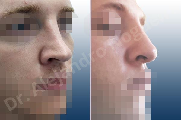 Before & After Case ZUQ8WQDI