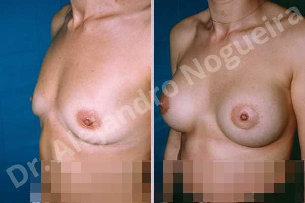 Empty breasts,Lateral breasts,Mildly saggy droopy breasts,Pigeon chest,Small breasts,Too far apart wide cleavage breasts,Wide breasts,Lower hemi periareolar incision,Round shape,Subfascial pocket plane - photo 2