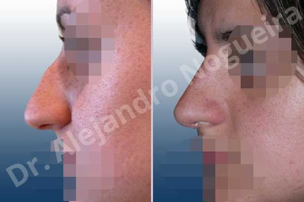 Before & After Case ZXFHT2B9