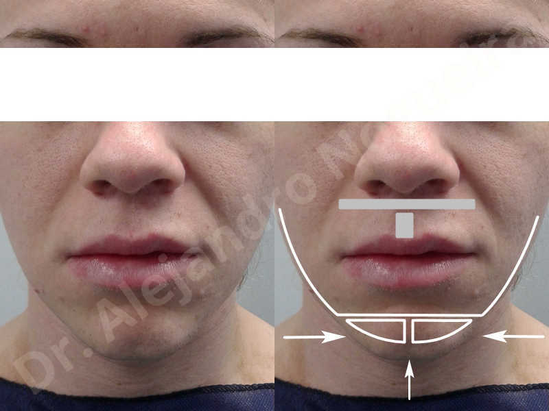 Large chin,Transgender chin,Horizontal chin osteotomy,Horizontal osseous chin resection,Two dimensional genioplasty,Vertical osseous chin resection - photo 1