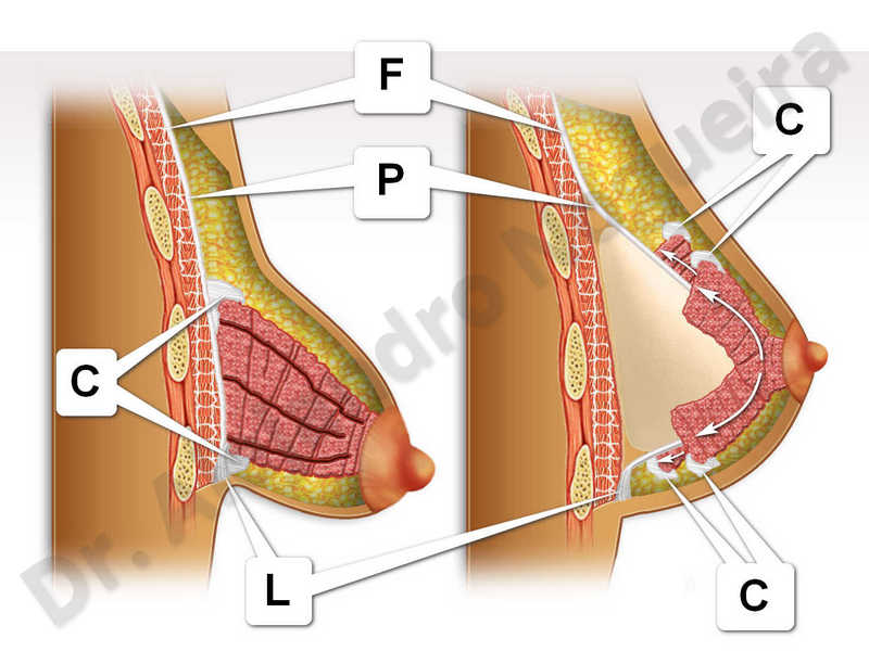 Large areolas,Tuberous breasts,Areola reduction,Tuberous mammoplasty - photo 1
