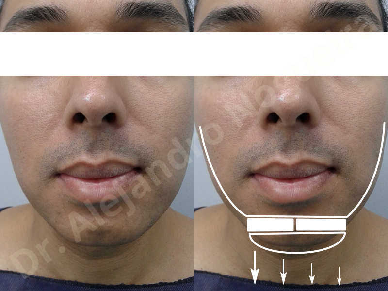 Small chin,Weak chin,Oblique chin osteotomy,Elbow bone graft harvesting,Osseous chin advancement,Two dimensional genioplasty,Vertical osseous chin grafting - photo 1