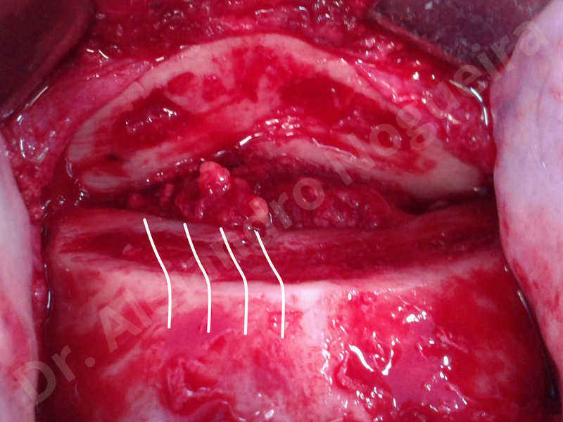 Small chin,Weak chin,Oblique chin osteotomy,Elbow bone graft harvesting,Osseous chin advancement,Two dimensional genioplasty,Vertical osseous chin grafting - photo 10