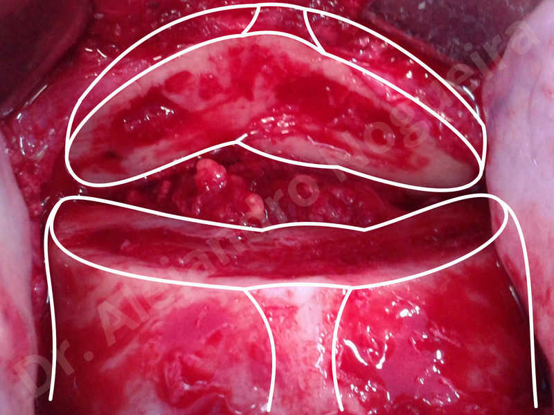 Small chin,Weak chin,Oblique chin osteotomy,Elbow bone graft harvesting,Osseous chin advancement,Two dimensional genioplasty,Vertical osseous chin grafting - photo 11