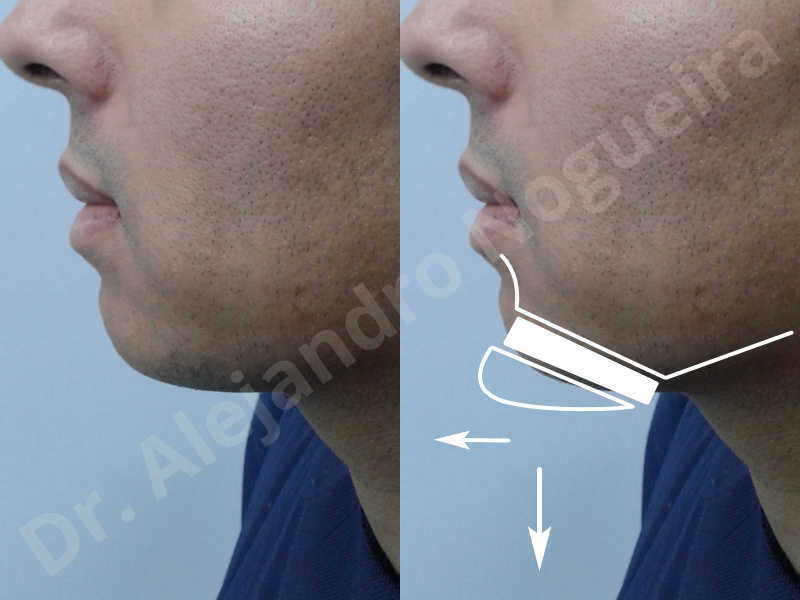 Small chin,Weak chin,Oblique chin osteotomy,Elbow bone graft harvesting,Osseous chin advancement,Two dimensional genioplasty,Vertical osseous chin grafting - photo 2