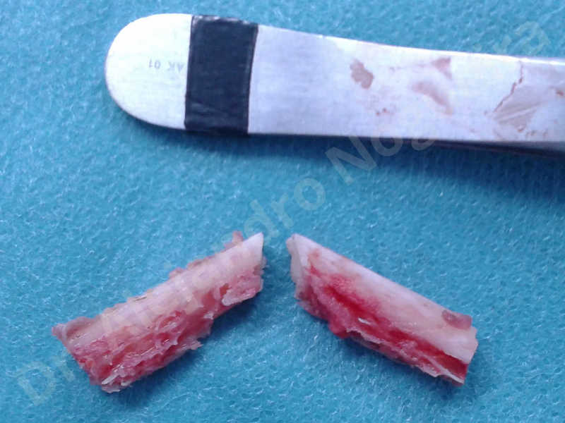 Small chin,Weak chin,Oblique chin osteotomy,Elbow bone graft harvesting,Osseous chin advancement,Two dimensional genioplasty,Vertical osseous chin grafting - photo 20