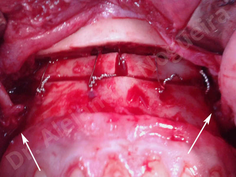 Small chin,Weak chin,Oblique chin osteotomy,Elbow bone graft harvesting,Osseous chin advancement,Two dimensional genioplasty,Vertical osseous chin grafting - photo 26