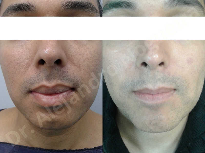 Small chin,Weak chin,Oblique chin osteotomy,Elbow bone graft harvesting,Osseous chin advancement,Two dimensional genioplasty,Vertical osseous chin grafting - photo 33
