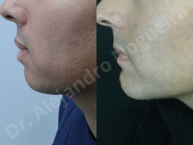Small chin,Weak chin,Oblique chin osteotomy,Elbow bone graft harvesting,Osseous chin advancement,Two dimensional genioplasty,Vertical osseous chin grafting - photo 34