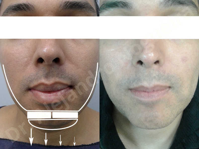 Small chin,Weak chin,Oblique chin osteotomy,Elbow bone graft harvesting,Osseous chin advancement,Two dimensional genioplasty,Vertical osseous chin grafting - photo 35