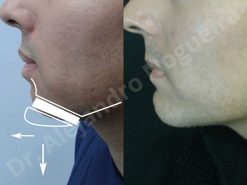 Small chin,Weak chin,Oblique chin osteotomy,Elbow bone graft harvesting,Osseous chin advancement,Two dimensional genioplasty,Vertical osseous chin grafting - photo 36