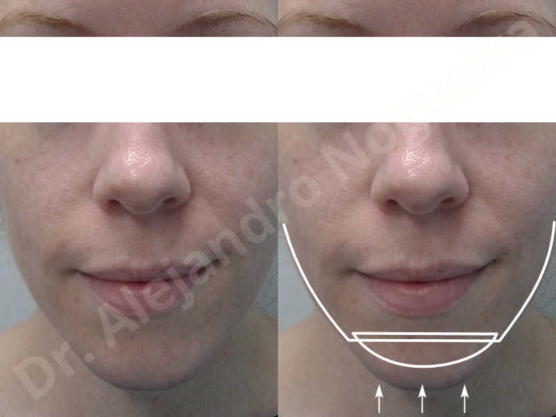 Large chin,Weak chin,Oblique chin osteotomy,Osseous chin advancement,Two dimensional genioplasty - photo 1