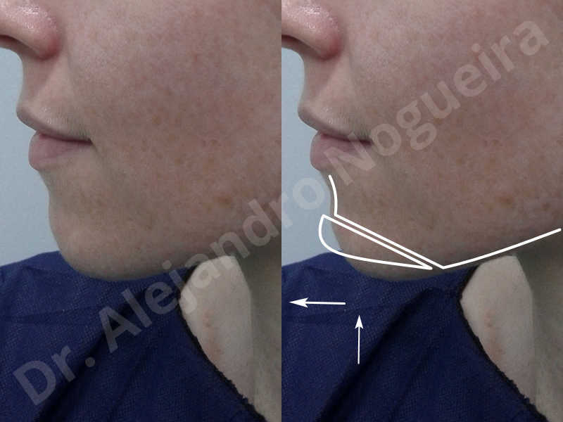 Large chin,Weak chin,Oblique chin osteotomy,Osseous chin advancement,Two dimensional genioplasty - photo 2