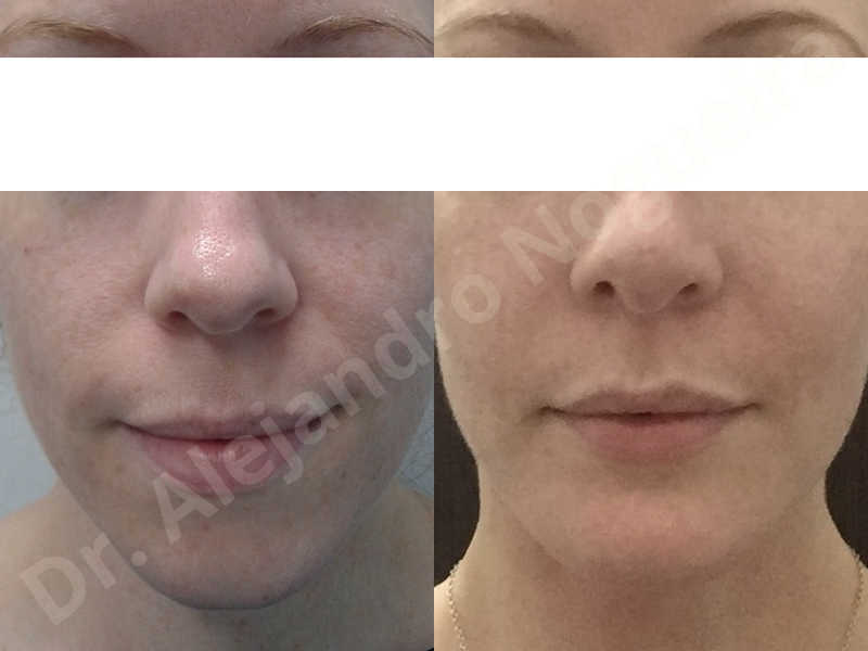 Large chin,Weak chin,Oblique chin osteotomy,Osseous chin advancement,Two dimensional genioplasty - photo 22