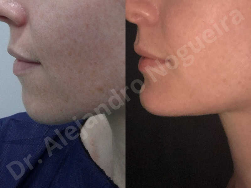 Large chin,Weak chin,Oblique chin osteotomy,Osseous chin advancement,Two dimensional genioplasty - photo 23