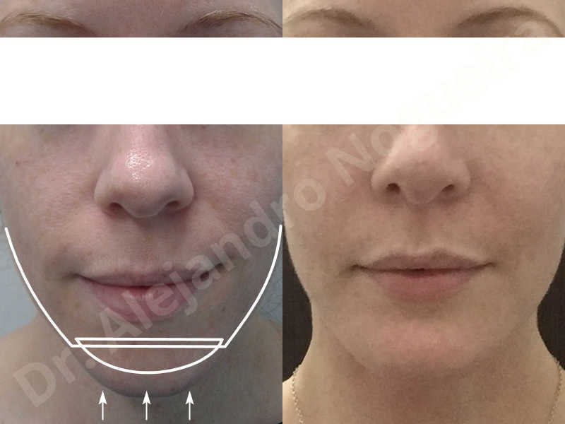 Large chin,Weak chin,Oblique chin osteotomy,Osseous chin advancement,Two dimensional genioplasty - photo 24