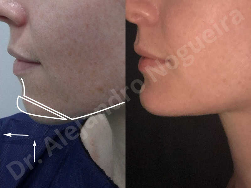 Large chin,Weak chin,Oblique chin osteotomy,Osseous chin advancement,Two dimensional genioplasty - photo 25