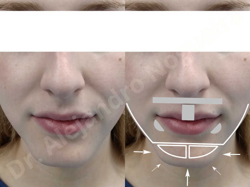Large chin,Prominent chin,Transgender chin,Horizontal osseous chin resection,Oblique chin osteotomy,Osseous chin setback,Three dimensional genioplasty,Vertical osseous chin resection - photo 1