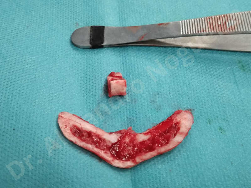 Large chin,Prominent chin,Transgender chin,Horizontal osseous chin resection,Oblique chin osteotomy,Osseous chin setback,Three dimensional genioplasty,Vertical osseous chin resection - photo 28