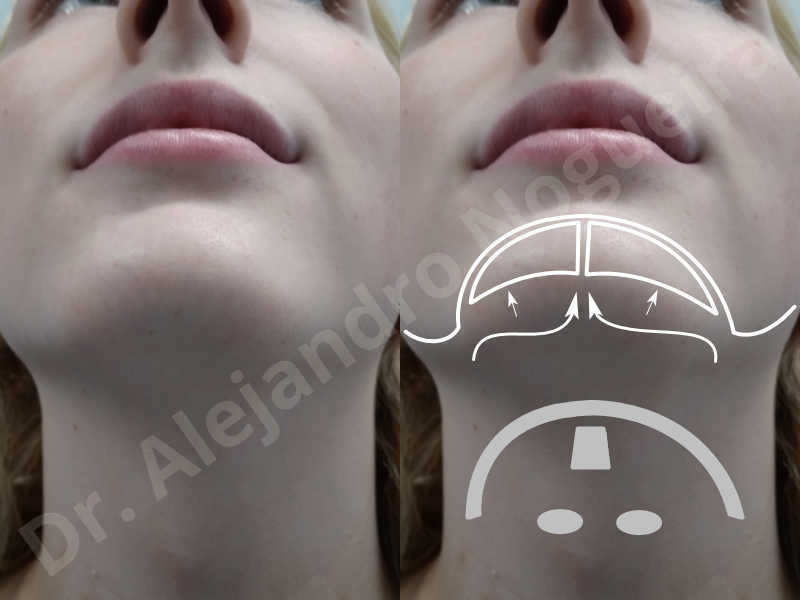 Large chin,Prominent chin,Transgender chin,Horizontal osseous chin resection,Oblique chin osteotomy,Osseous chin setback,Three dimensional genioplasty,Vertical osseous chin resection - photo 3