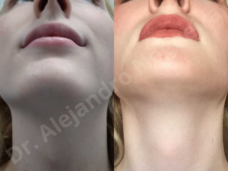 Large chin,Prominent chin,Transgender chin,Horizontal osseous chin resection,Oblique chin osteotomy,Osseous chin setback,Three dimensional genioplasty,Vertical osseous chin resection - photo 43