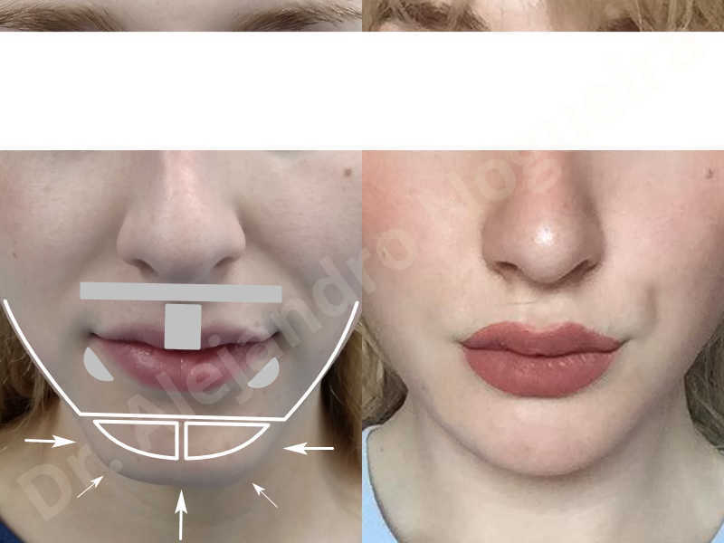 Large chin,Prominent chin,Transgender chin,Horizontal osseous chin resection,Oblique chin osteotomy,Osseous chin setback,Three dimensional genioplasty,Vertical osseous chin resection - photo 44