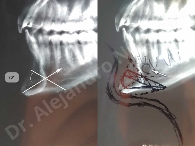 Large chin,Prominent chin,Transgender chin,Horizontal osseous chin resection,Oblique chin osteotomy,Osseous chin setback,Three dimensional genioplasty,Vertical osseous chin resection - photo 5