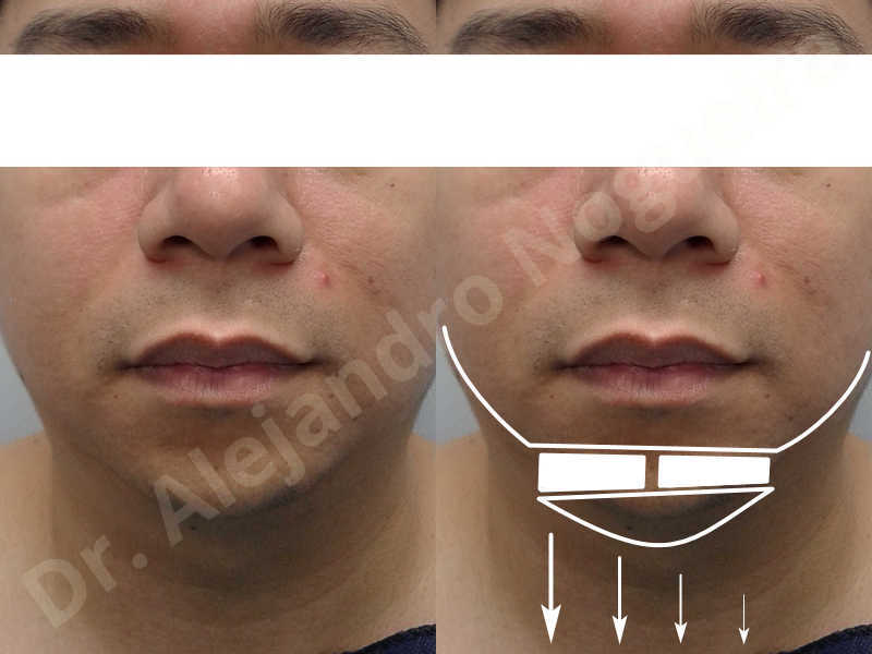 Small chin,Weak chin,Elbow bone graft harvesting,Oblique chin osteotomy,Osseous chin advancement,Two dimensional genioplasty,Vertical osseous chin grafting - photo 1