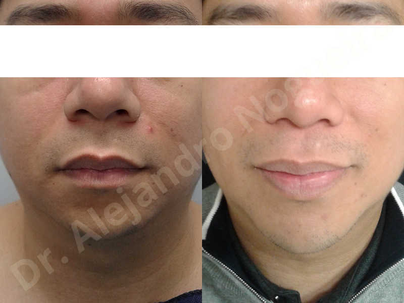 Small chin,Weak chin,Elbow bone graft harvesting,Oblique chin osteotomy,Osseous chin advancement,Two dimensional genioplasty,Vertical osseous chin grafting - photo 19