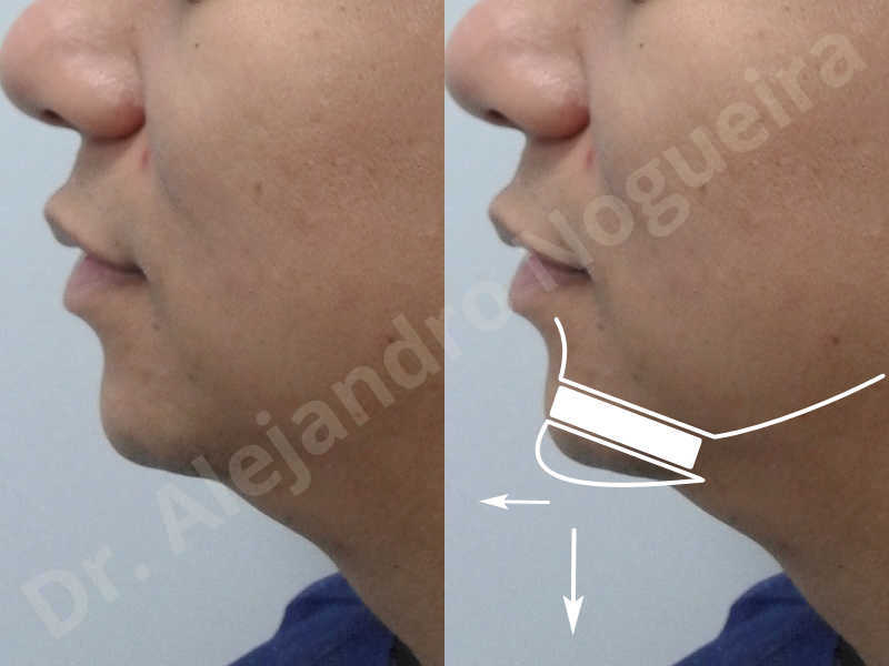 Small chin,Weak chin,Elbow bone graft harvesting,Oblique chin osteotomy,Osseous chin advancement,Two dimensional genioplasty,Vertical osseous chin grafting - photo 2