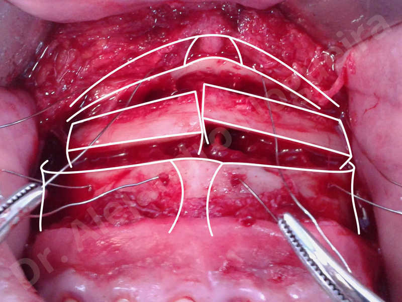 Small chin,Weak chin,Elbow bone graft harvesting,Oblique chin osteotomy,Osseous chin advancement,Two dimensional genioplasty,Vertical osseous chin grafting - photo 8