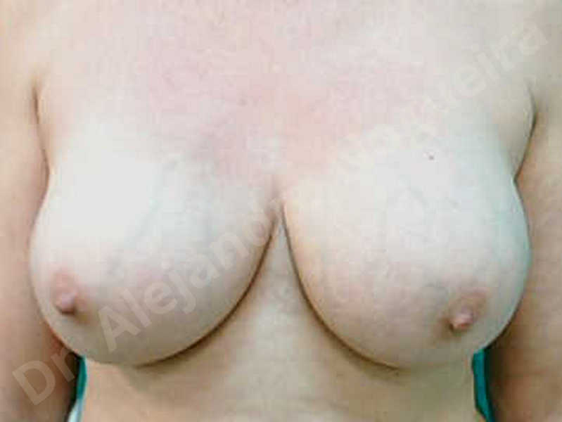 Breast implants capsular contracture,Breast implants capsule calcification,Breast implants displacement malposition,Breast implants riding too high,Breast tissue infection,Breast tissue necrosis,Broken breast implants,Lateral breasts,Mildly large breasts,Severely saggy droopy breasts,Too far apart wide cleavage breasts,Wide breasts,Capsulectomy - photo 1