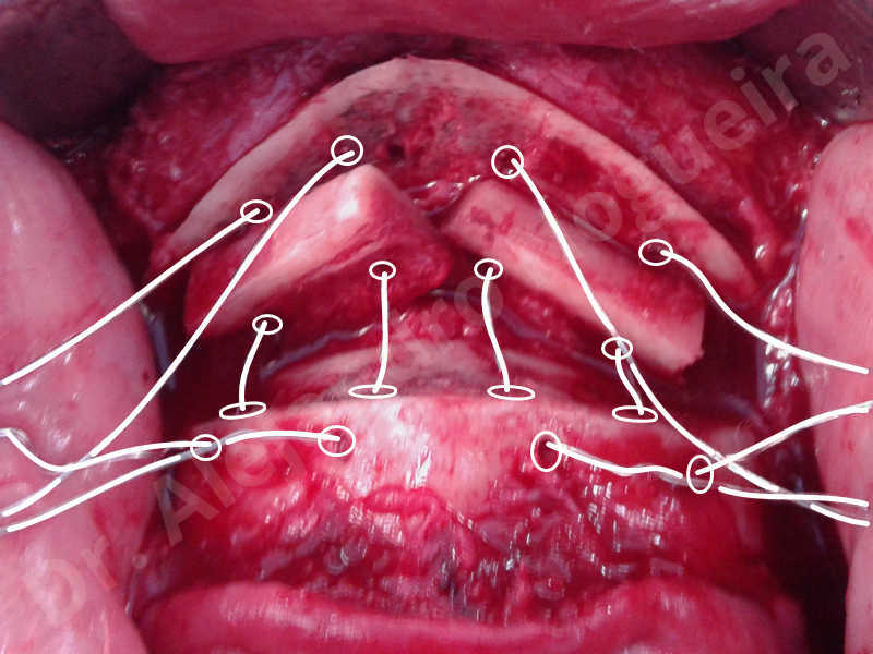 Small chin,Weak chin,Elbow bone graft harvesting,Oblique chin osteotomy,Osseous chin advancement,Two dimensional genioplasty,Vertical osseous chin grafting - photo 22