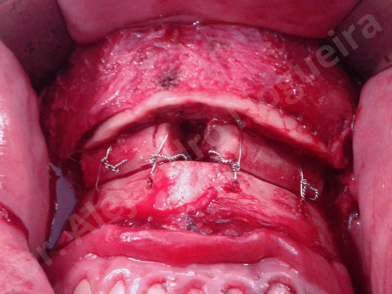 Small chin,Weak chin,Elbow bone graft harvesting,Oblique chin osteotomy,Osseous chin advancement,Two dimensional genioplasty,Vertical osseous chin grafting - photo 23